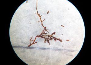Imagen al microscopio de una raíz micorrizada.
