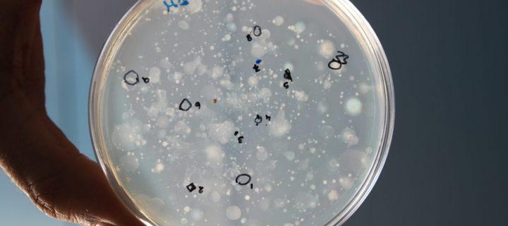 Bacterias beneficiosas en el compostaje de alperujo para desarrollar futuros abonos orgánicos mejorados